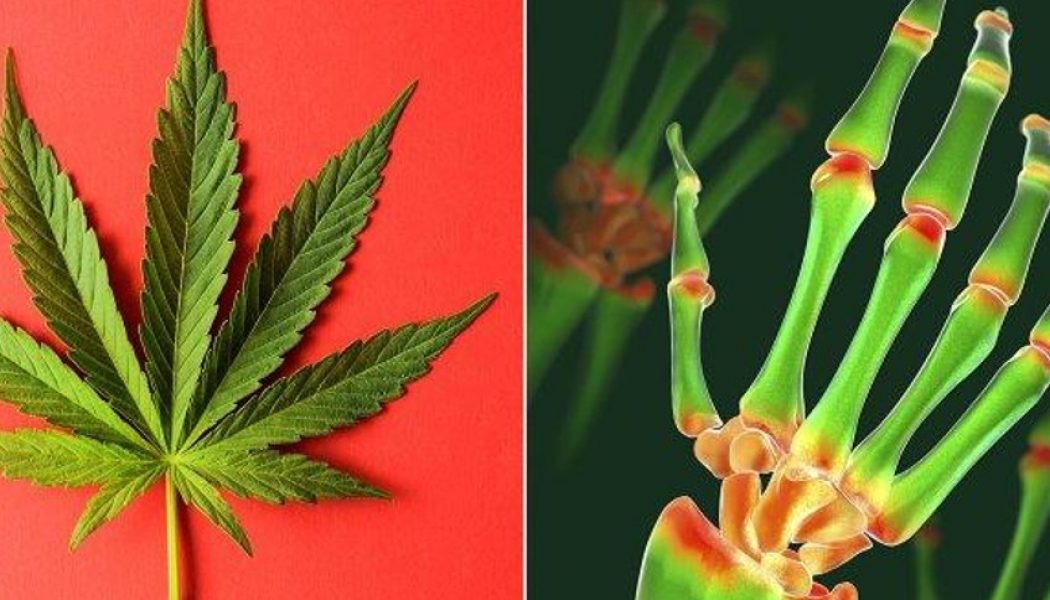 Arthritis, Cannabis, and What You Need to Know