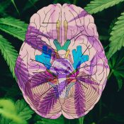 Could Hemp-Derived CBD Help Patients With Traumatic Brain Injury?